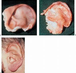 Injuries to the Ear and Temporal Bone | Ento Key