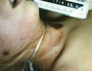 Pictures Of BodyEvidence Jonbenet Ramsey Case