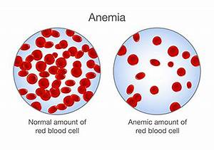 Anemia in Dogs: Causes, Treatment, Signs of Anemia and ...