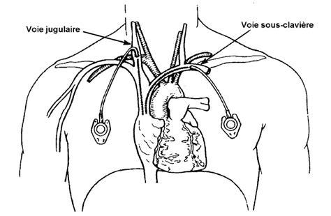 chambre implantable infirmier pose de perfusion et injection sur cip récap 39 ide