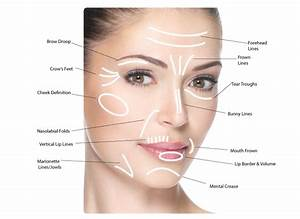 Prp Face Lift - Prp Injections