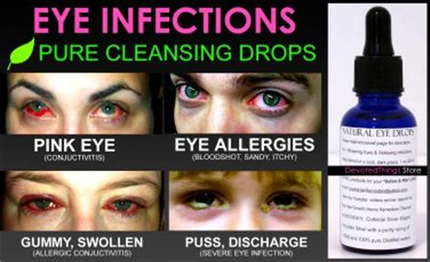Natural Eye Drops For Pink Eye And Eye Infections Pure. Dave N Buster Locations Cheapest Rv Insurance. Health Insurance Quote South Carolina. Residential Hvac Design Hotel Marketing Sales. Text And Email Marketing Help Desk Flow Chart. Water Heater Capacity Calculator. Dish Latino Bonus Pack Medical Record Storage. Alternative Treatments For Epilepsy. Madden Nfl 13 Free Download Ct Tick Control