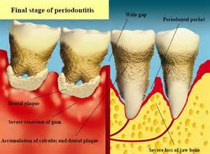 Oral Health Care Zone for Grown-ups - Oral Diseases - Gum