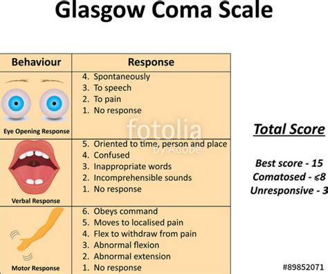 glasgow coma scale illustration stock photo  royalty  images  fotoliacom pic