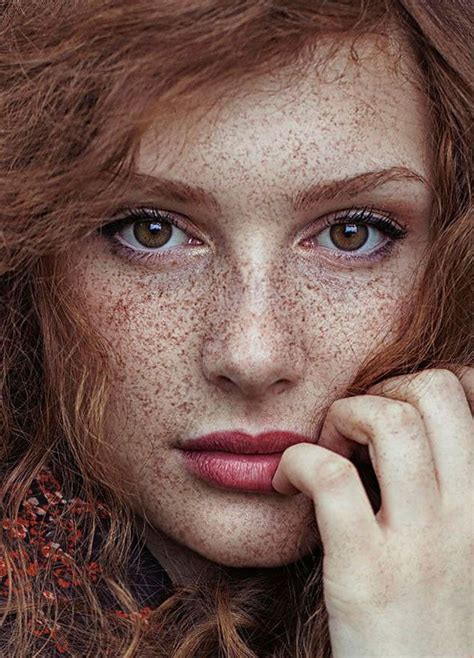 Freckled People Who Hypnotize You With Their Unique