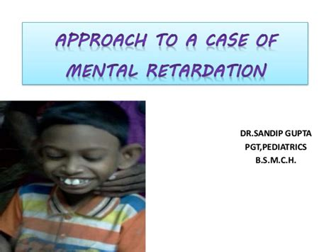 How To Start A Home For Mentally Challenged by Mental Retardation