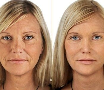 Get Collagen Before and After (6) | Get Collagen