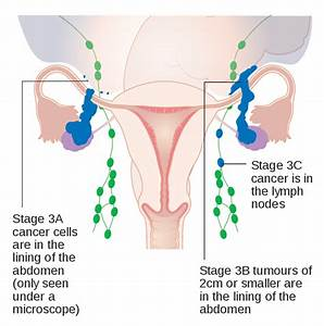 File Diagram Showing Stage 3a To 3c Ovarian Cancer Cruk 225 Svg