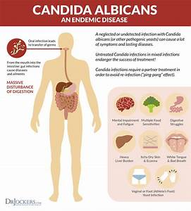 Candida Overgrowth: Best Home & Lab Tests - DrJockers.com