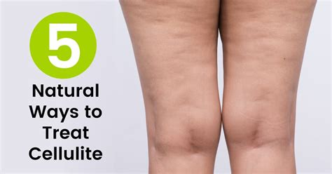 How to Get Rid of Cellulite: 5 Natural Treatments - Dr. Axe