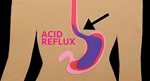 Heartburn Video On The Truth About Acid Reflux