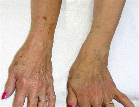 Varicose And Spider Vein Treatment Before And After Photo