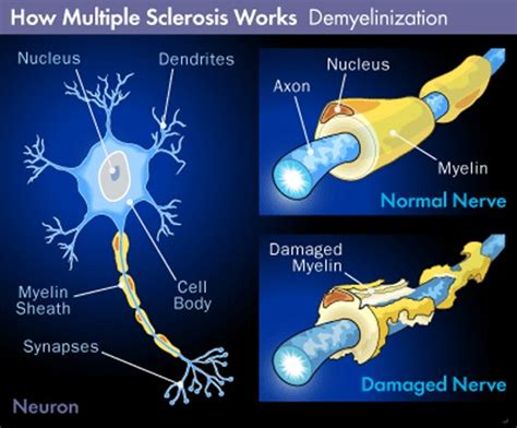 multiple sclerosis pictures
