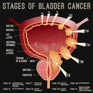 Bladder Anatomy Scheme Stock Vector  Illustration Of Full