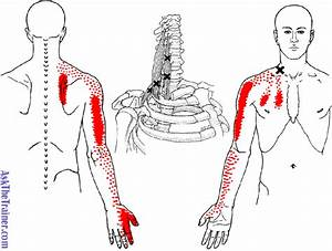 The Dreaded levator Scapulae massage Therapy Articles