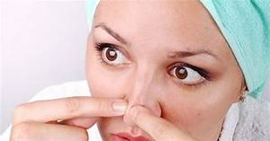 How To Get Rid Of Pores On Nose All About The Problem