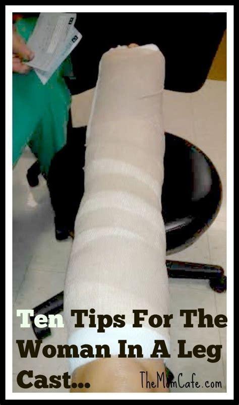 Ten Tips For The Woman In A Leg Cast Leg Cast Broken