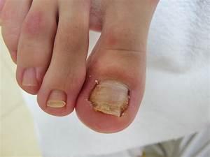 Вывести грибок ногтей способом