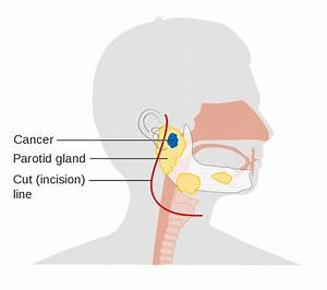 File Diagram Of The Parotid Gland Before Surgery To Remove