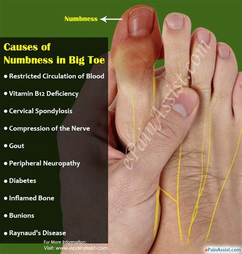 Causes Of Numbness In Big Toe & Its Treatment. Light Case Signs. Fun Road Signs. Structure Signs. Mdd Signs Of Stroke. Wooden House Signs. Anorexia Signs Of Stroke. April 19 Signs. Gbs Signs