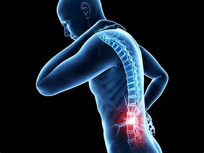 Pain Chronic Spinal Treatment Cord Stimulation Obesity