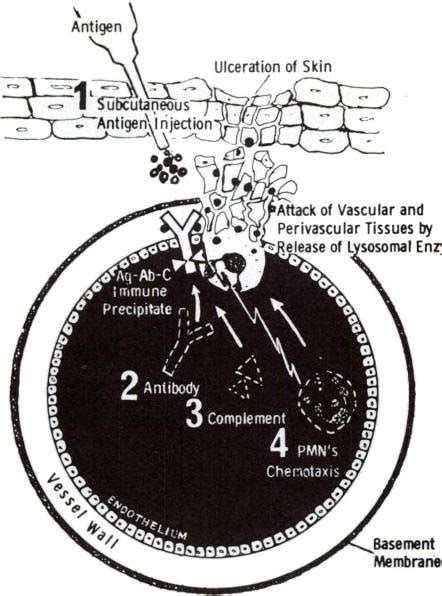 gamma globulin horse snake venom injection antiserum subcutaneous local given bite publication