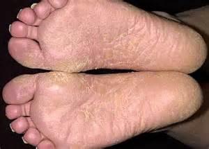 Dermatology: athletes feet on hands, hand dermatitis, eczema  Dermatitis Dermatology