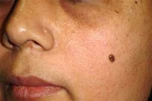 Mole Meanings on Body or Face for Male & Female, Lucky or ...