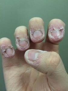 How To Stop Biting Your Nails By Delia Botta Musely