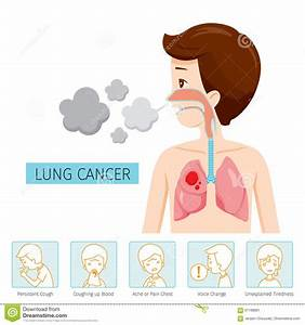 Man With Lung Cancer Diagram And Symptoms Icons Stock