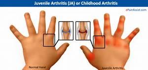 ... Arthritis, Juvenile Idiopathic; Arthritis, Juvenile Rheumatoid; Still  Juvenile Rheumatoid Arthritis Rheumatoid Arthritis