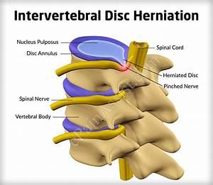 Disc Herniation – applecool.info