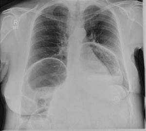 Erect Chest Radiograph  Showing A Large Hiatus Hernia And