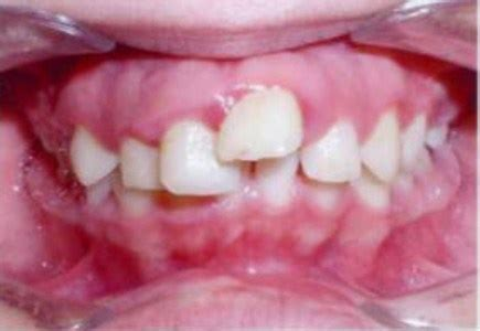 """January 31, 2003 members of the legislative audit committee: Dentist Tells His Story - """"Medicaid for Braces is Over"""" - Texas Dentists for Medicaid Reform"""