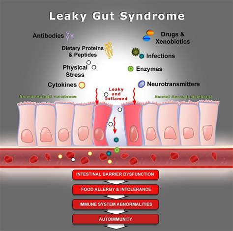 Leaky Gut Syndrome - Roth Wellness and Chiropractic