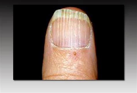 can low vitamin d cause hair vitamin deficiency fingernails awesome nail