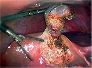 Image Gallery Sick Gallbladder