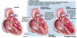 ... Cardiomyopathy. Causes, symptoms, treatment Dilated Cardiomyopathy  Dilated cardiomyopathy Cardiomyopathy