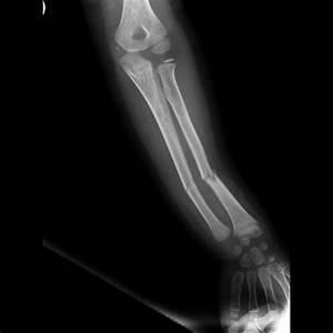 Greenstick fractures involving both radius and ulna ...
