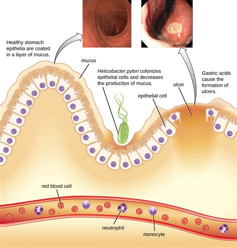 Bacterial Infections Of The Gastrointestinal Tract Online