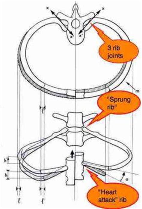 Rhomboid knot, numbness tip of index finger
