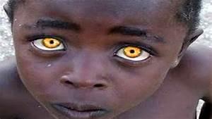 Les Yeux Les Plus Rare : 10 personnes avec la couleur des yeux uniques au monde youtube ~ Nature-et-papiers.com Idées de Décoration