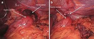 Laparoscopic View Of The Hiatus A Before Reduction Of The