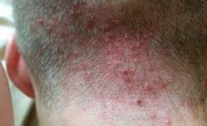 pictures    rid  scalp folliculitis