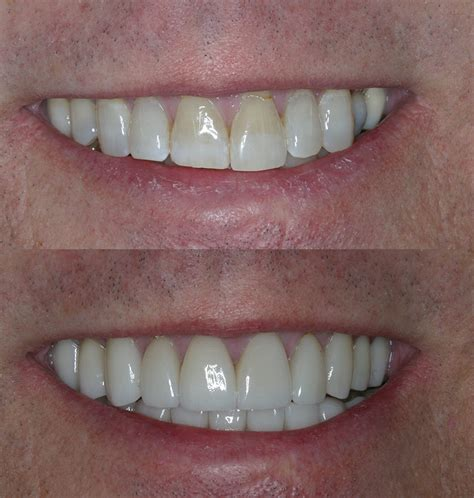 porcelain crowns cosmetic dentists