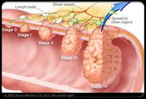 colorectal_cancer_s10_colorectal_cancer_stages Colorectal Cancer