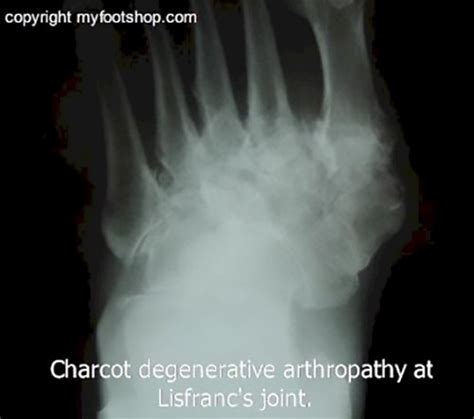 charcot joint foot xray ray lisfranc normal myfootshop treatment causes