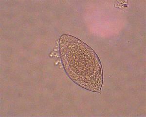 Typical Egg Capsule Of Schistosoma Haematobium With Its