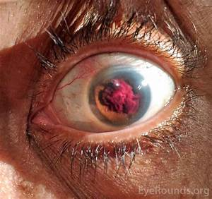 Hyphema Following Aborted Istent Procedure