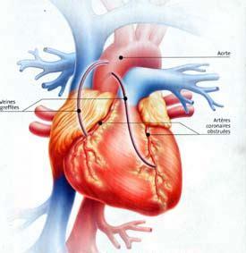 maladies des coronaires